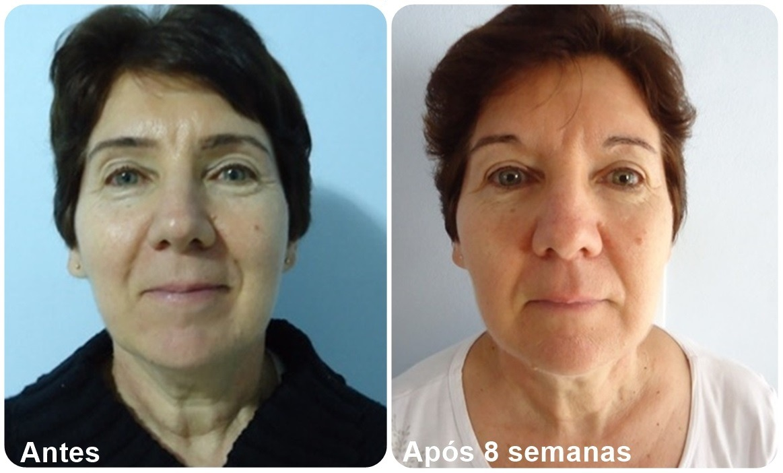 Sonia F. - Antes e depois