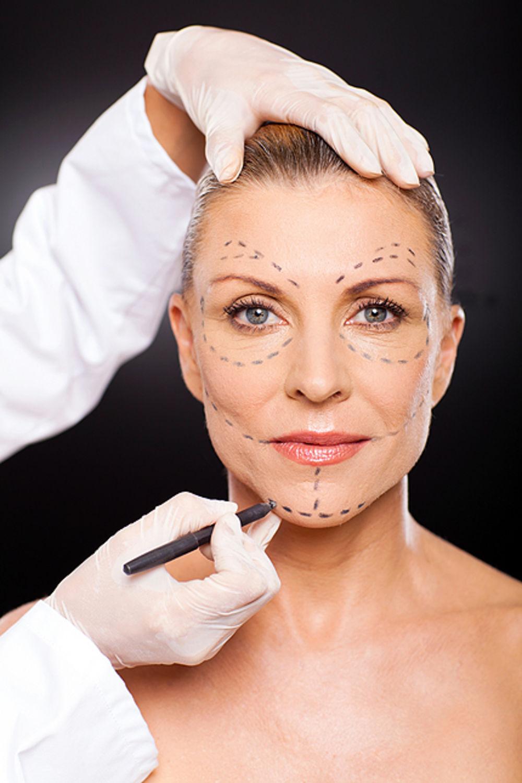Mulher Olha Fixo A Câmera Enquanto Um Médico Desenha Traços No Seu Rosto Antes De Um Procedimento Cirúrgico. Posteriormente, Ela Também Necessitará Preocupar-se Com A Cicatrização E A Recuperação De Cirurgias Plásticas