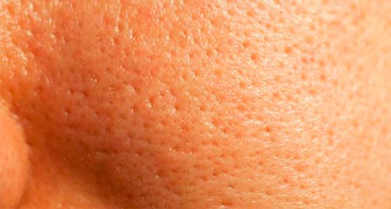 5 Passos Para Tratar Poros Dilatados