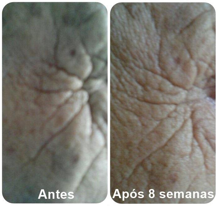 Anastacio - Antes e depois
