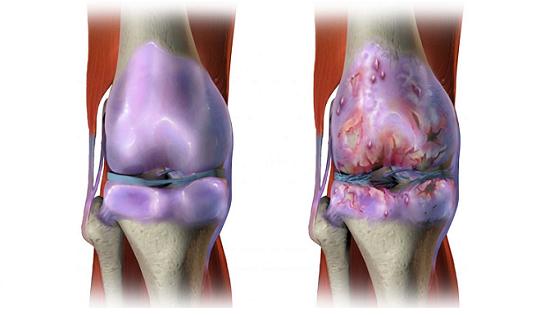 O Que Fazer Para Evitar Artrose? A Prevenção é Sempre O Melhor Remédio!